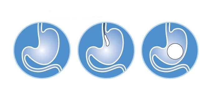 Maigrir : pose ballon intragastrique