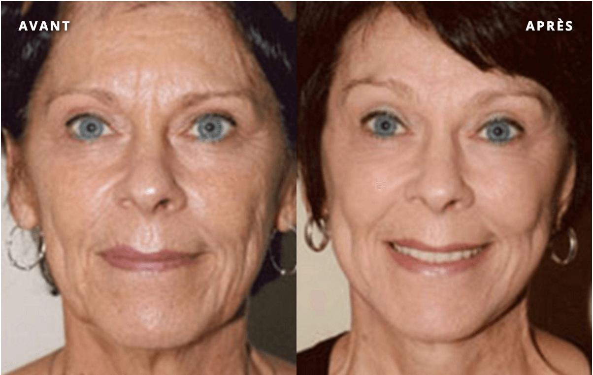 lifting-du-visage-et-du-front-botox-patient-4-1