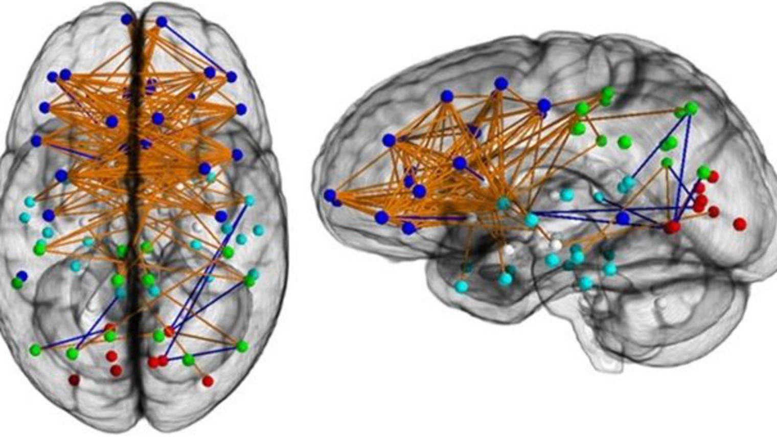 cerveau02